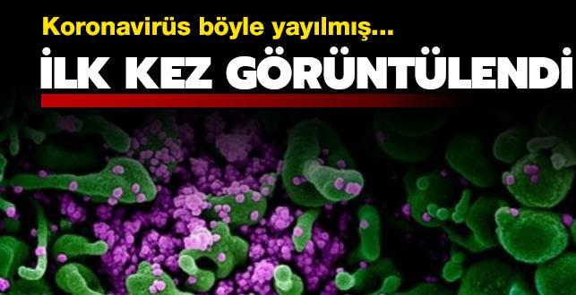 Koronavirüs böyle yayılmış... İlk kez görüntülendi