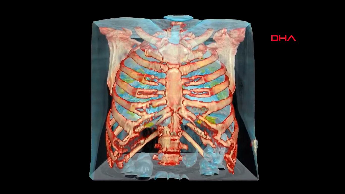 Koronavirüs bulunan akciğerin 3D görüntüsü yayınlandı