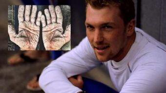 İngiliz kürekçi Alex Gregory, İngiltere'de düzenlenen Arctic yarışını tamamladıktan sonra ellerinin