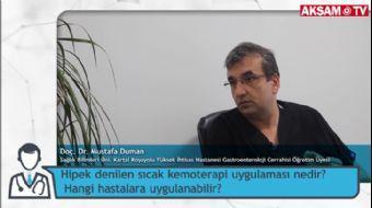 Sıcak Kemoterapi (HIPEC) Nedir? Hangi Hastalara Uygulanabilir? | Doç. Dr. Mustafa Duman
