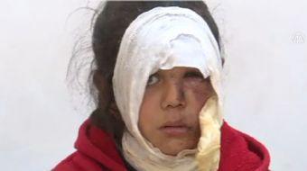 PYD/PKK terör örgütünün zulmünden kurtulmak için Afrin´den güçlükle ayrılabilen bir aileden 6 kişi,