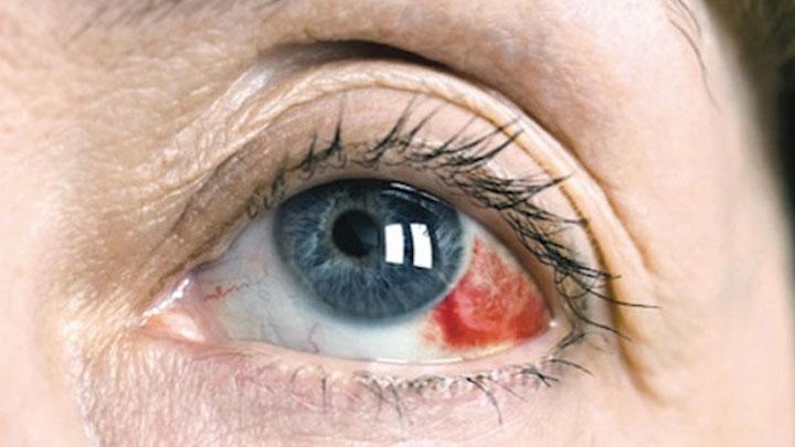 Очень красные глаза что делать