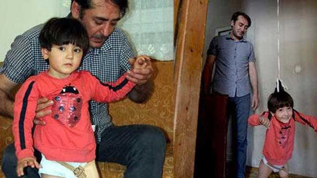 3,5 yaşındaki Özge Yıldırım yeni protezine kavuşmak için gün sayıyor