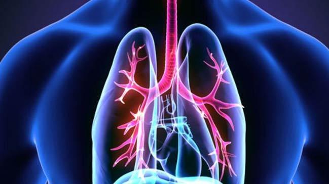 Kanser riskli akciğer nodüllerinde 'mavi boya' devrimi