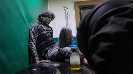 Doğu Guta'daki 700 hasta ve yaralı Türkiye'nin girişimiyle Şam'a götürüldü