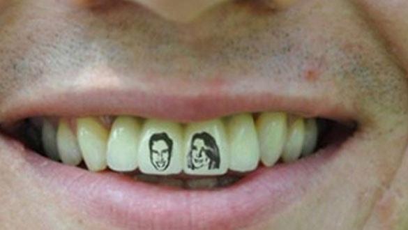 Dişlerde yeni trend: Diş dövmesi