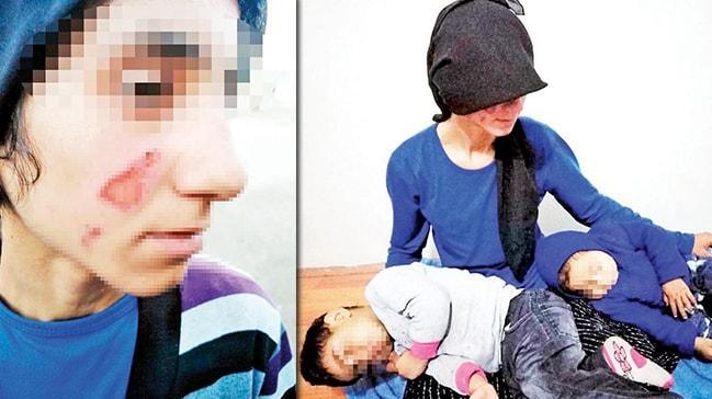 Anne ile küçük kızına işkence: Naylon poşeti eritip yüzlerine damlattı