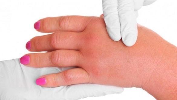 Soğuk alerjisi nasıl anlaşılır? Uzmanından 'buz-küp' testi önerisi