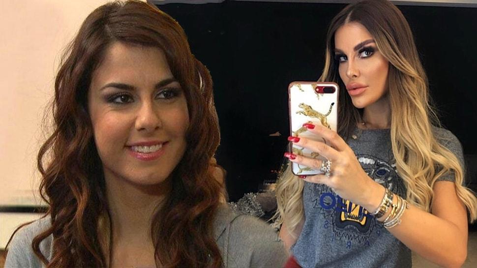 Adanalı dizisinin Pınar'ı Tuğçe Özbudak estetikle bambaşka biri oldu! Görenler tanıyamadı