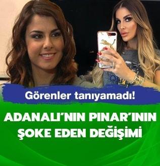 Adanalı dizisinin Pınar'ı estetikle bambaşka biri oldu!