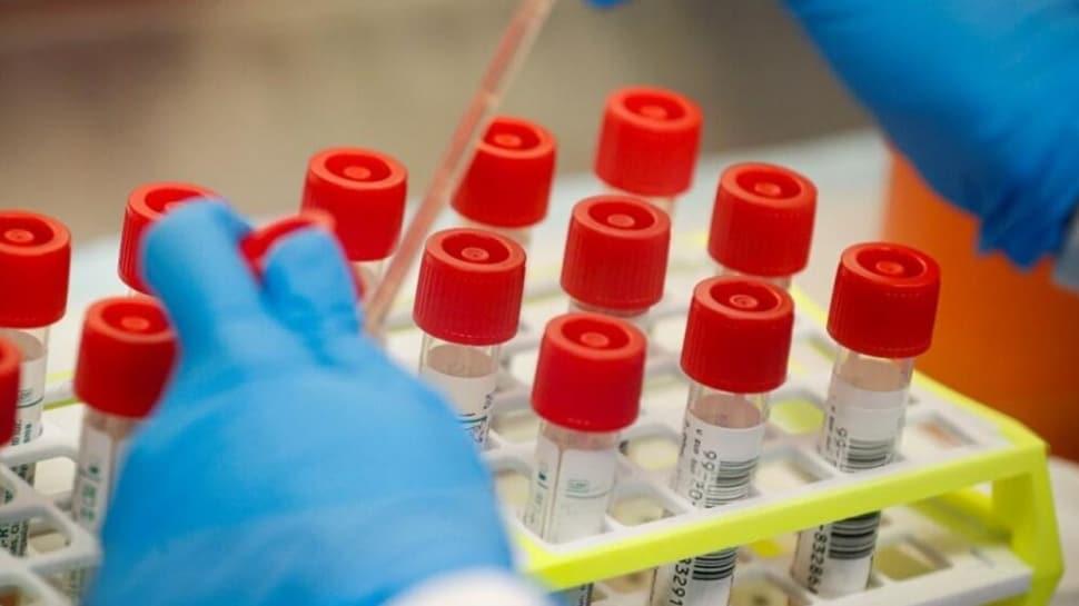 Japonya korona virüsüne iyi gelen ilaç için klinik çalışmalara başladı