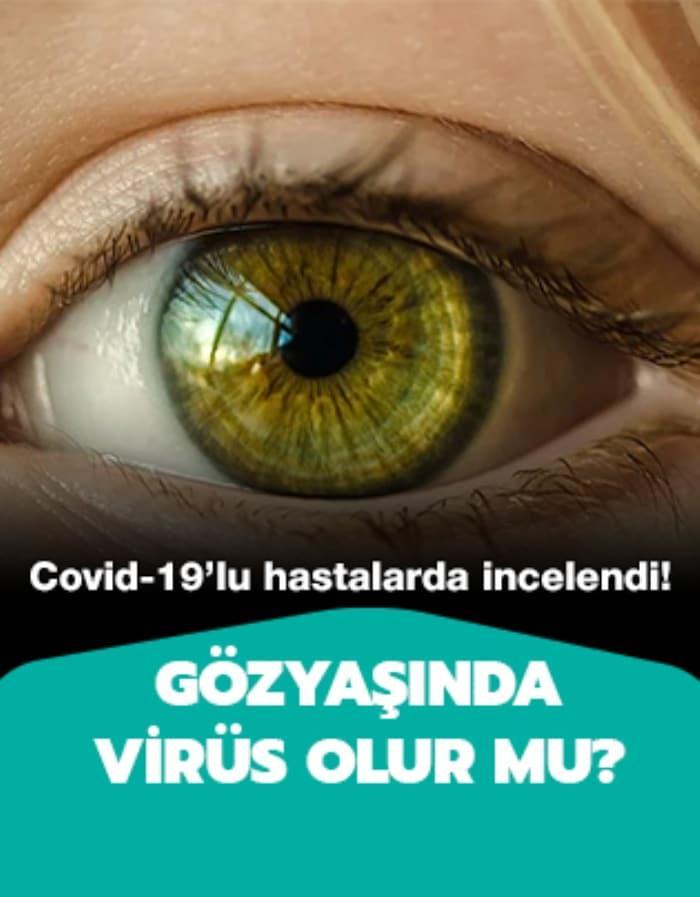 Koronavirüs gözlerden nasıl bulaşıyor?