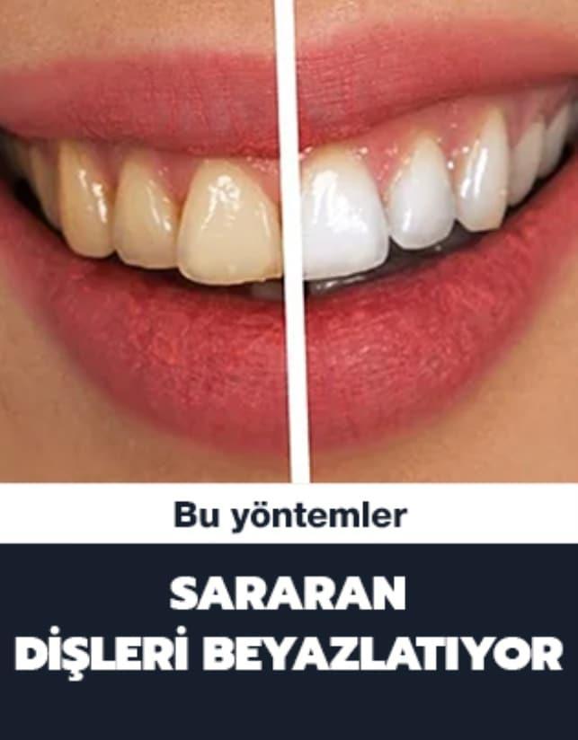 Sararan dişleri beyazlatma yöntemleri