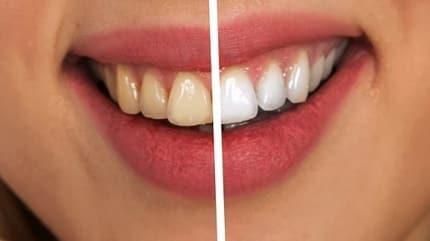 Sararan dişleri beyazlatma yöntemleri!